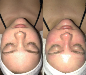 What Can I Expect of a Facial Spa in Scottsdale? | Inspire Day Spa